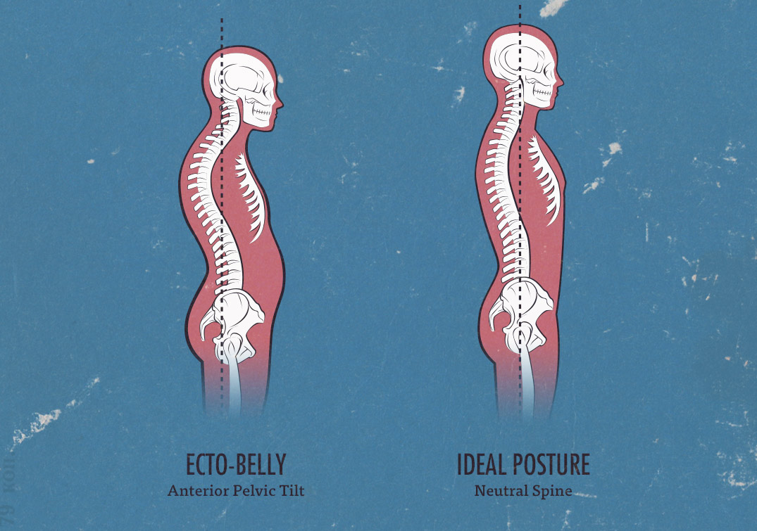 neutral spine, ideal posture, ecto-belly, skinny-fat, and typical ectomorph posture