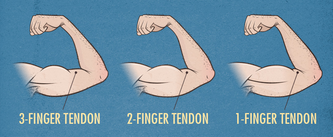 Bony to Beastly Muscle-Building Genetics Small Muscle Bellies