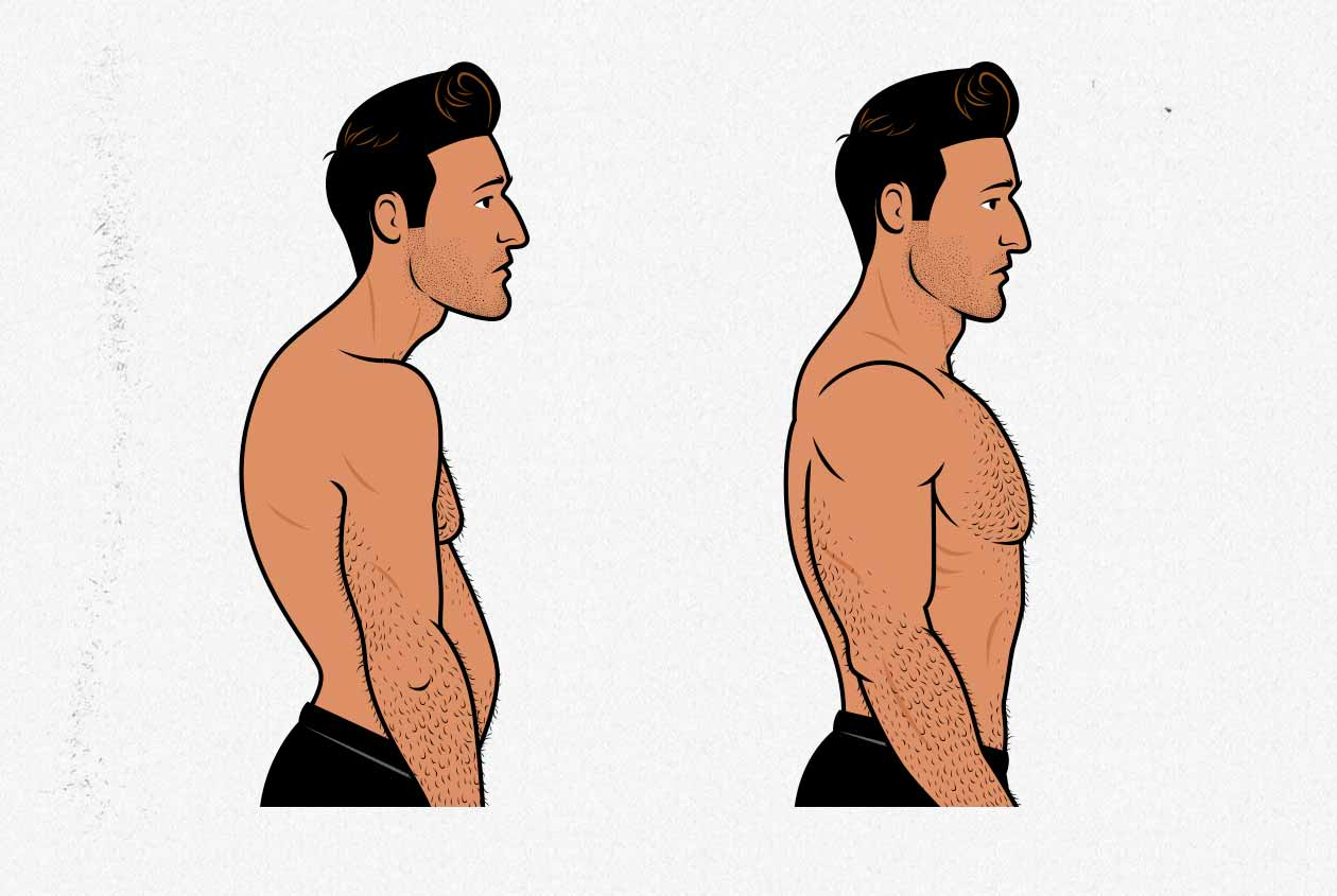 Before/After illustration of a man improving his posture.