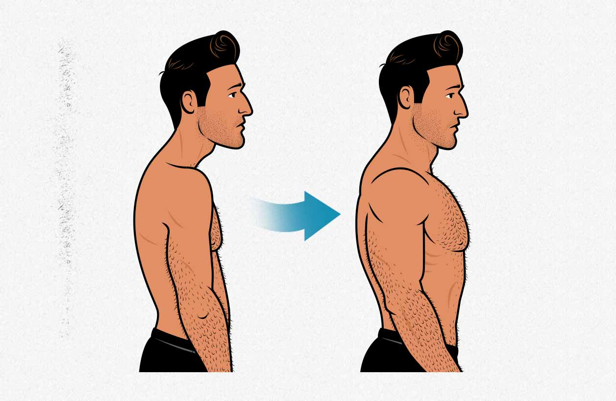 Before and after illustration of a man bulking up his posterior chain (spinal erectors) to improve his aesthetics.